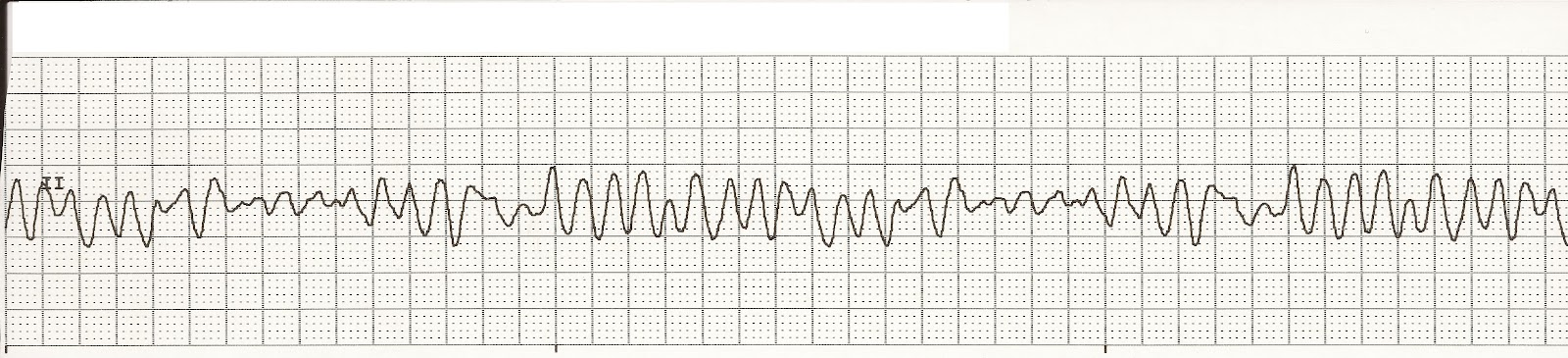 tachycardia definition of tachycardia by medical