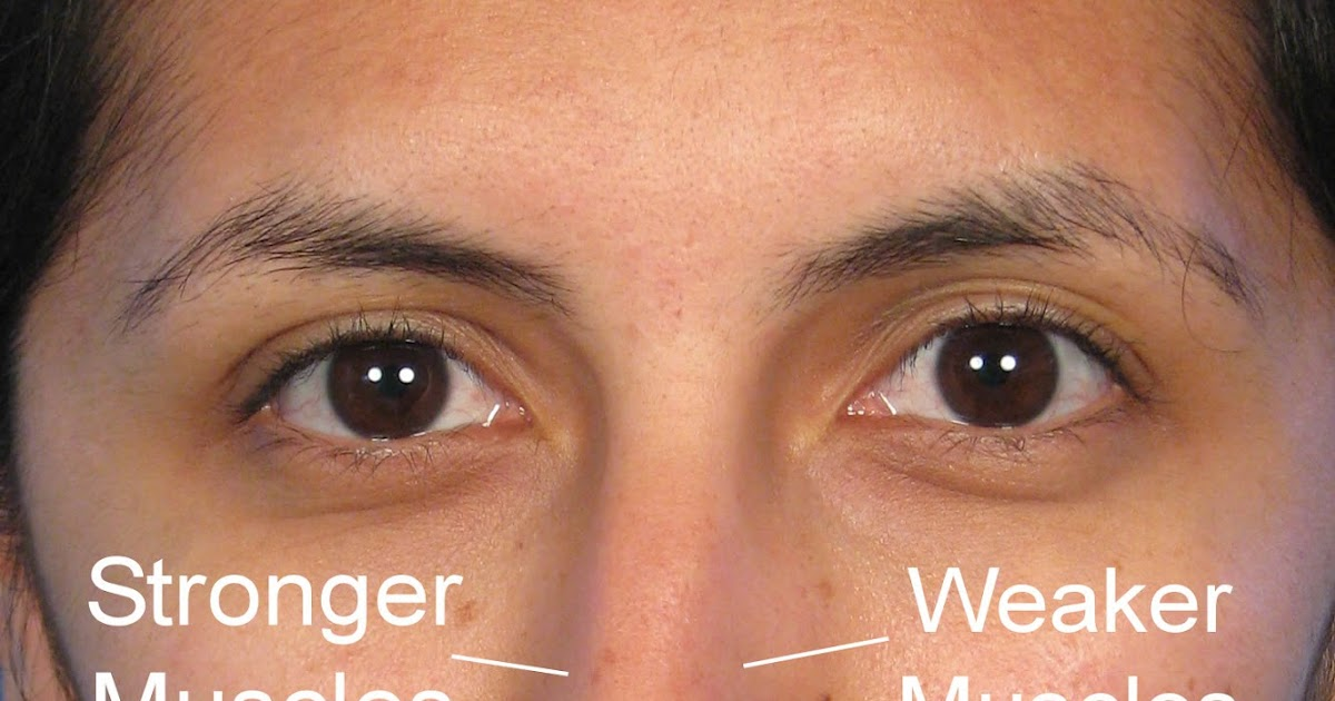 Image Gallery sideways nose