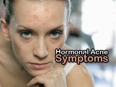 hormonal acne symptoms