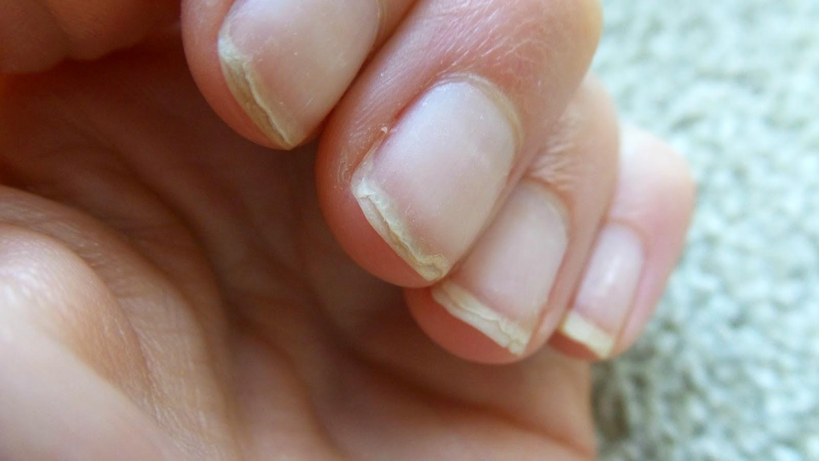 Nail Treatments For Damaged Nails - Eltoria