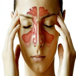 Sinusite, é melhor não abusar dos antibóticos e esperar