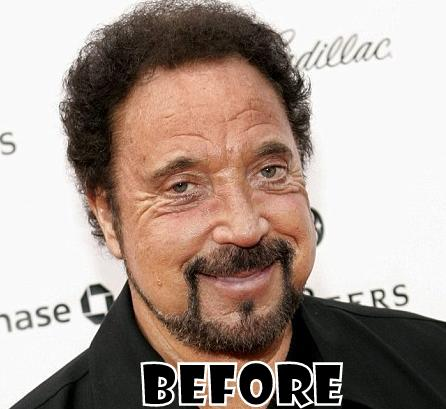 Tom Jones Plastic Surgery Before And After Eyelid And