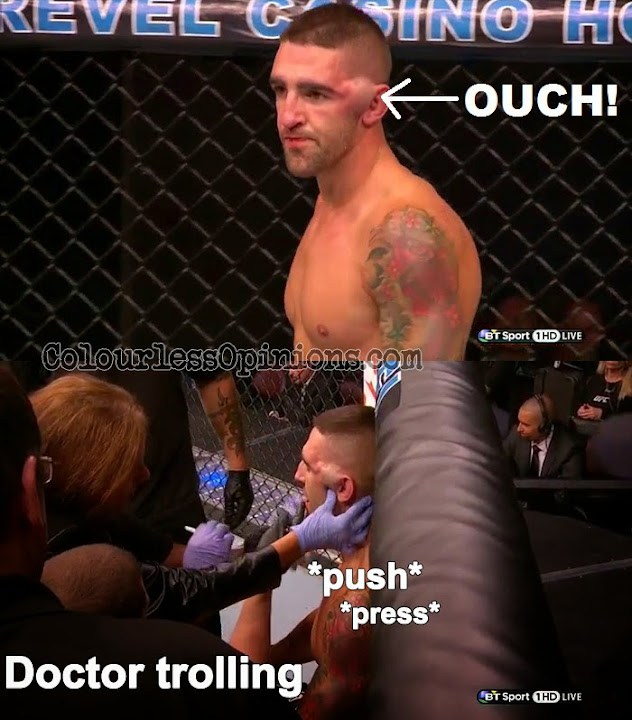 Joe Proctor head swell swollen hematoma in UFC Fight Night 45 vs. Justin Salas