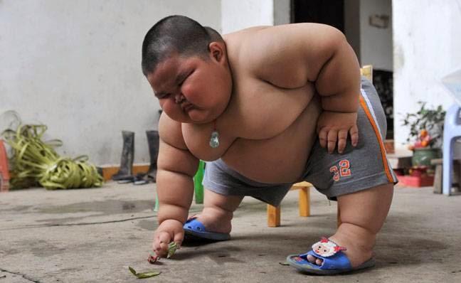 bahaya obesiti