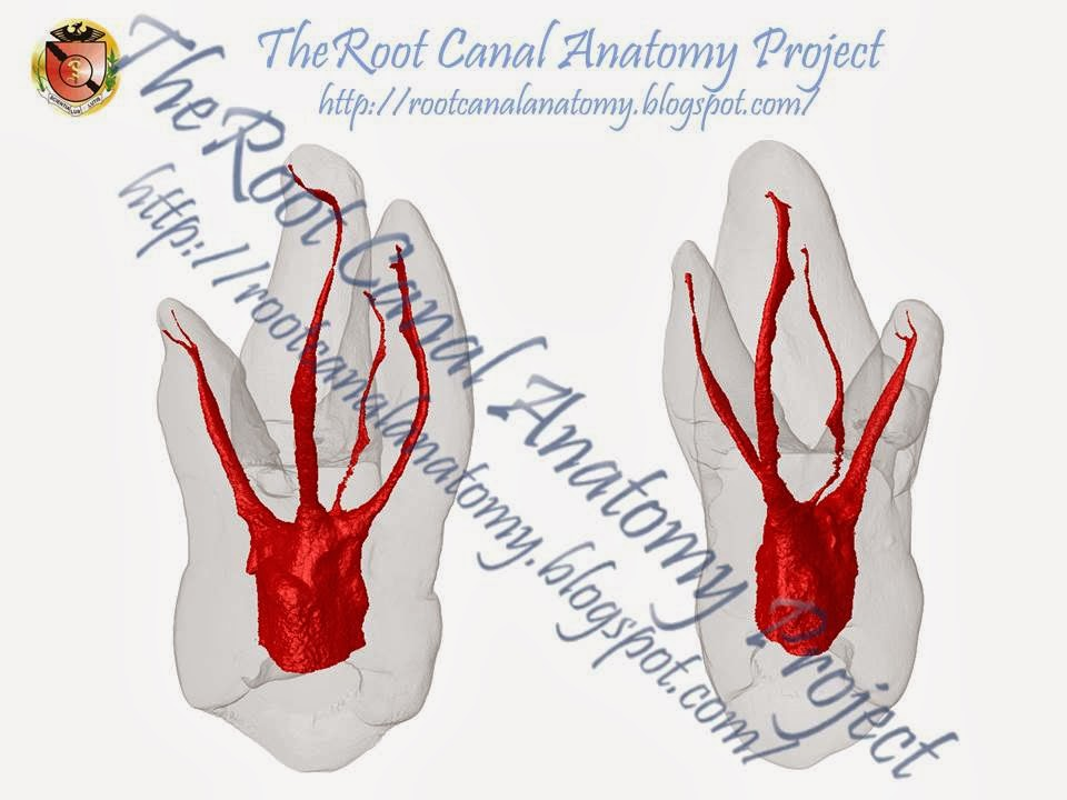 The Root Canal Anatomy Project: Maxillary First Molar: MB2
