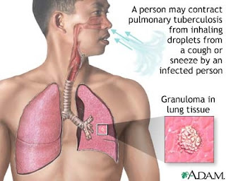 pulmonary tuberculosis pulmonary tuberculosis tb is a contagious ...
