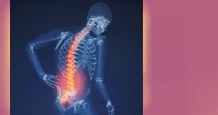 Gejala Diam Diam dari Penyakit Osteoporosis