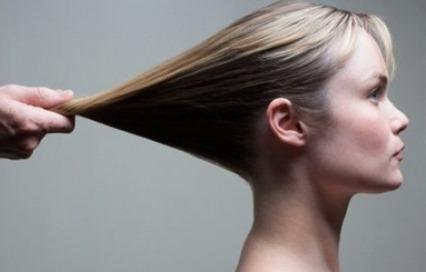 Los medicamentos de la alopecia para las mujeres