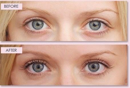 Bimatoprost ophthalmic solution 0.3% eye drop online