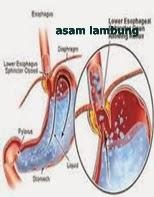 obat tradisional penyakit asam lambung