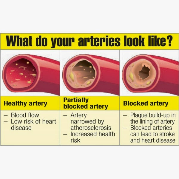 Foods That Naturally Clean Your Arteries