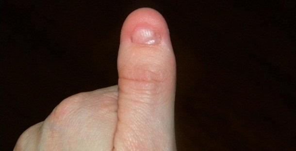 Síndrome da Unha-Patela