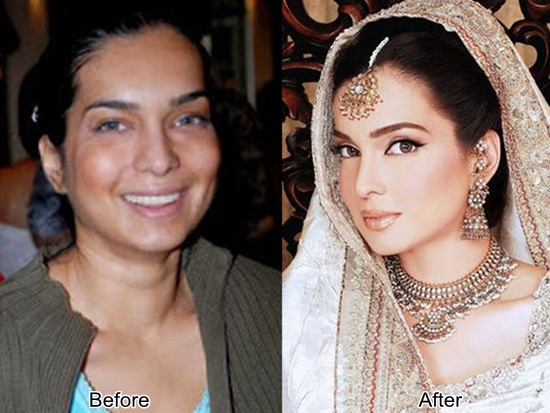 pakistani-celebrities-plastic-surgery