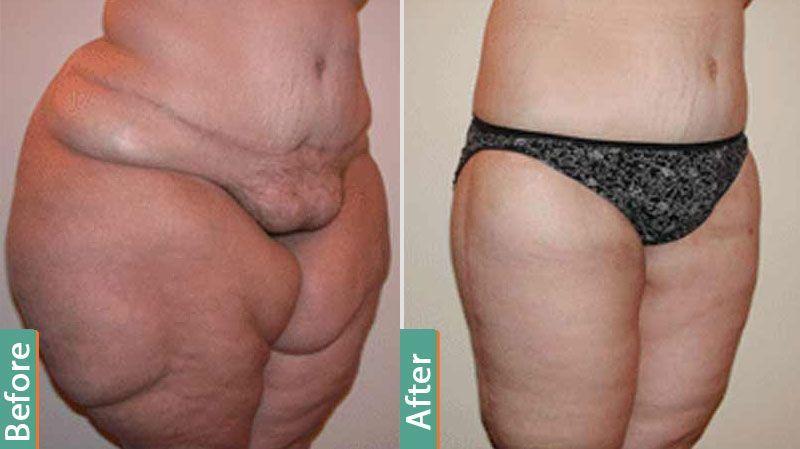 Mega liposuction cost