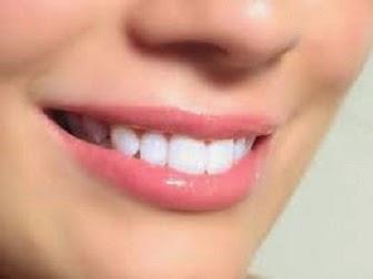 Bau Mulut Cara Memutihkan Gigi Bag 1