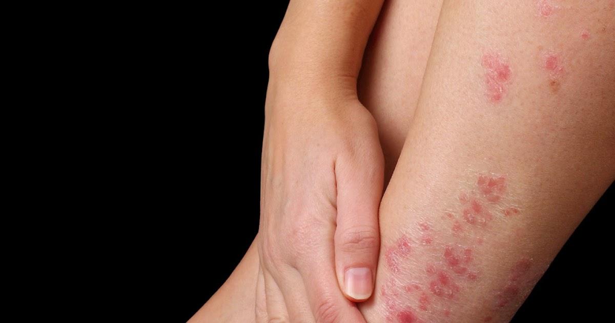 Atopichesky la dermatitis eliminatsionnye las medidas