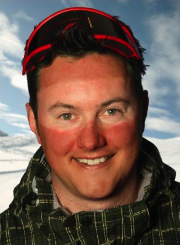 sunburn, google marks