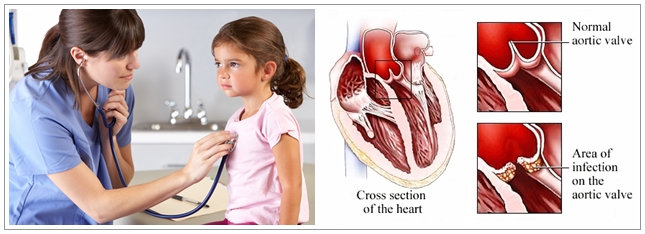 Cara Mengobati Jantung Rematik Pada Anak Paling Ampuh