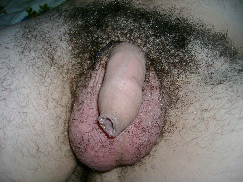 covering foreskin glans l penis r uncircumcisedpenis uncovering