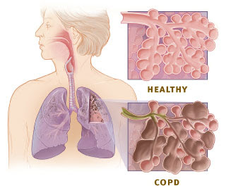 Nursing Management of COPD