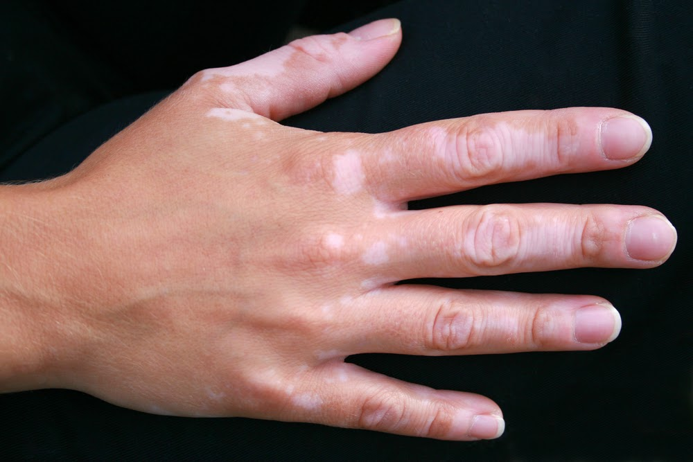 http://www.shineandsmile.com/shine/vitiligo.php