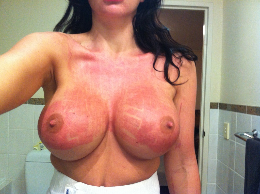 Breasts Laser Ipl For Sun Damage Sciton Bbl Sydney Christine Mcqueen