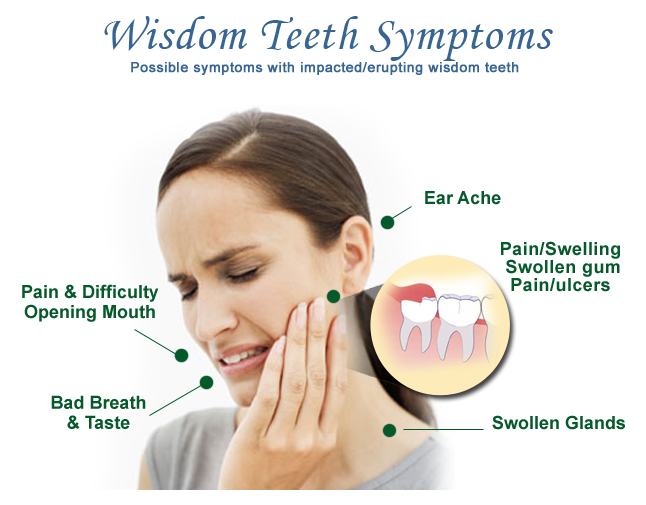We Care N You Smile  There Is No Wisdom In Having Wisdom Tooth U2026