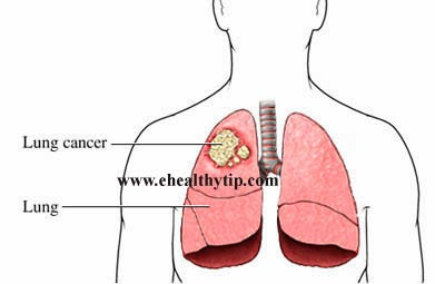 Lung Cancer Blood Test >> Lung Cancer Can Be Detected With Blood Test Ehealthytip