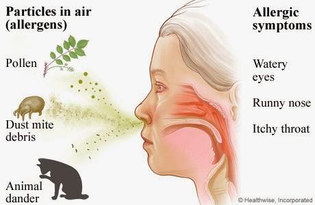 Obat Rinitis Alergi Herbal Madu Bekam Ruqyah Cirebon