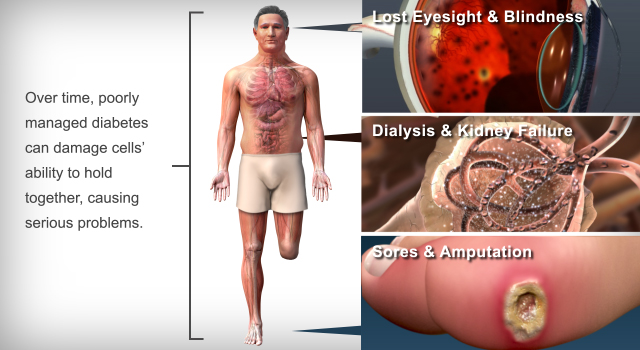 Diabetes Impacts Eyes