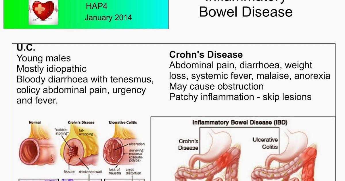 symptomen crohn zelftest