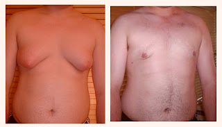 Adolescent Gynecomastia  before and after photo