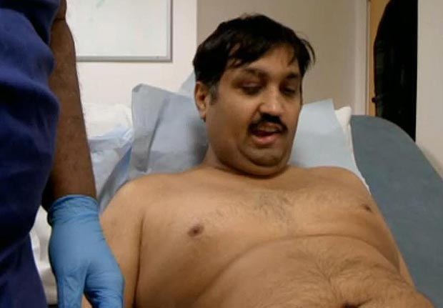 Man's New Penis Made Out Of His Arm