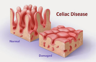 Celiac Disease Causes, Symptoms, Diagnosis And Treatment