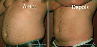 Fotos de criolipólise antes e depois - Homem