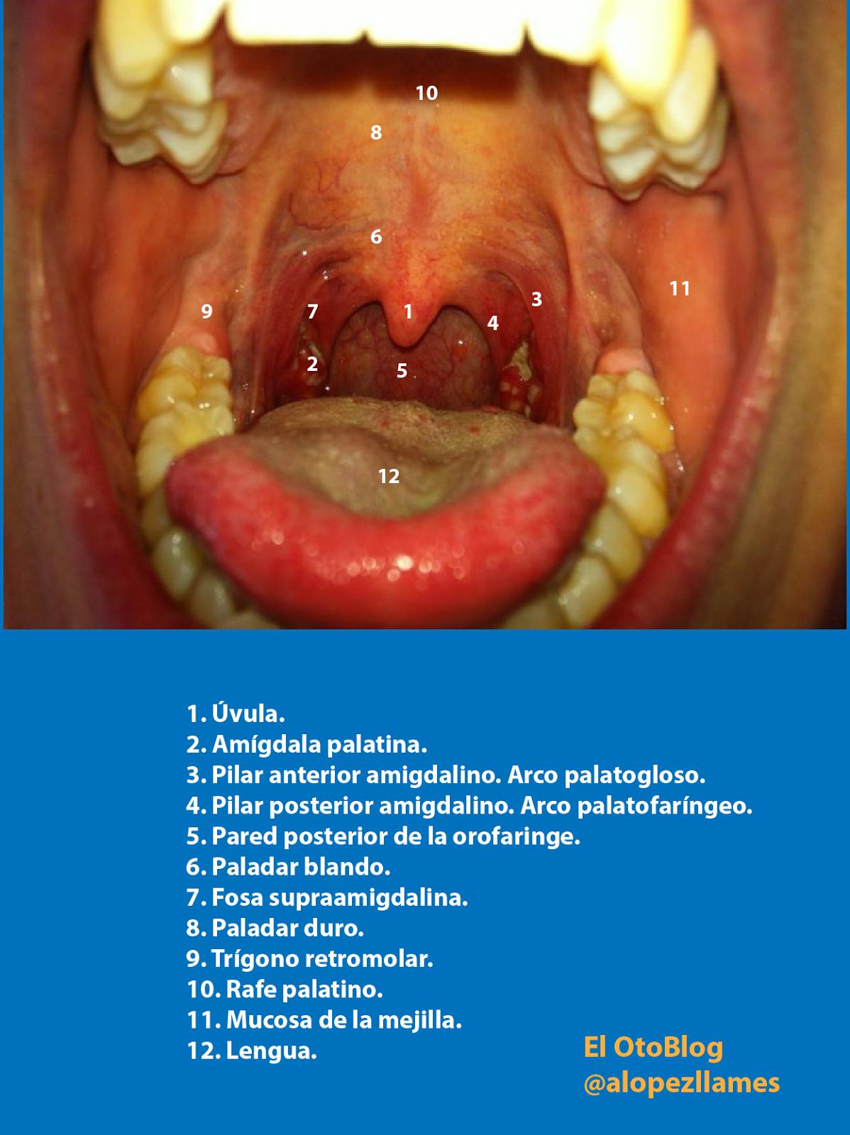 El OtoBlog: Abra la boca, pero...¿saque la lengua?
