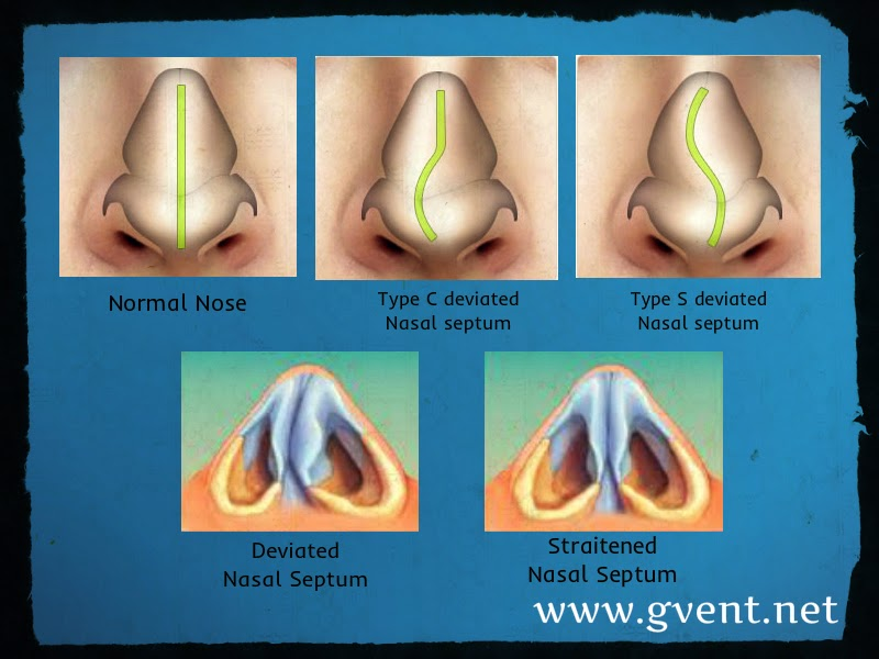 http://www.gvent.net/surgeries-offered/noserhinology-surgeries/rhinoplasty-cosmetic-surgery-of-the-nose/