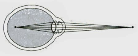 Pengertian Miopi (Rabun Jauh)