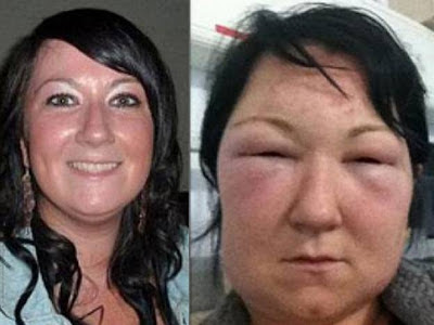 apunto de morir por alergia a teñirse