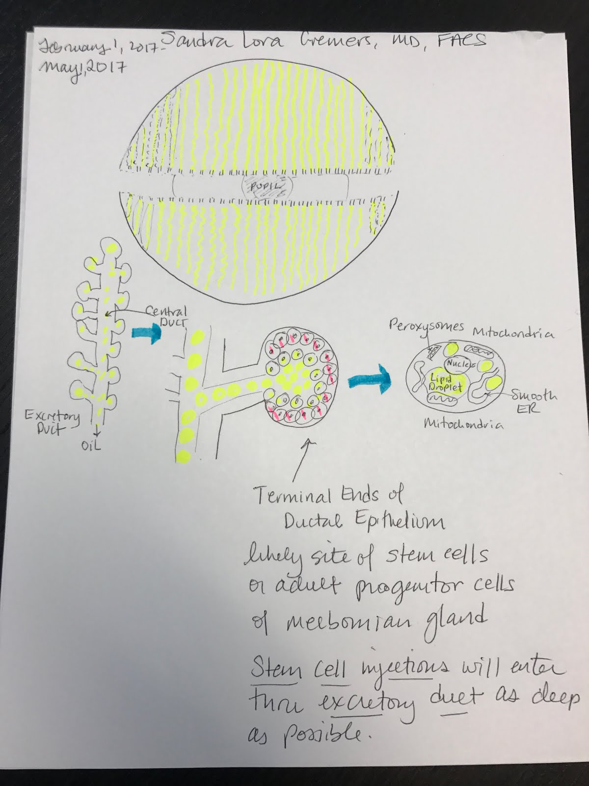Anatomy of a Meibomian Gland: Preparation for Stem Cell Injections ...