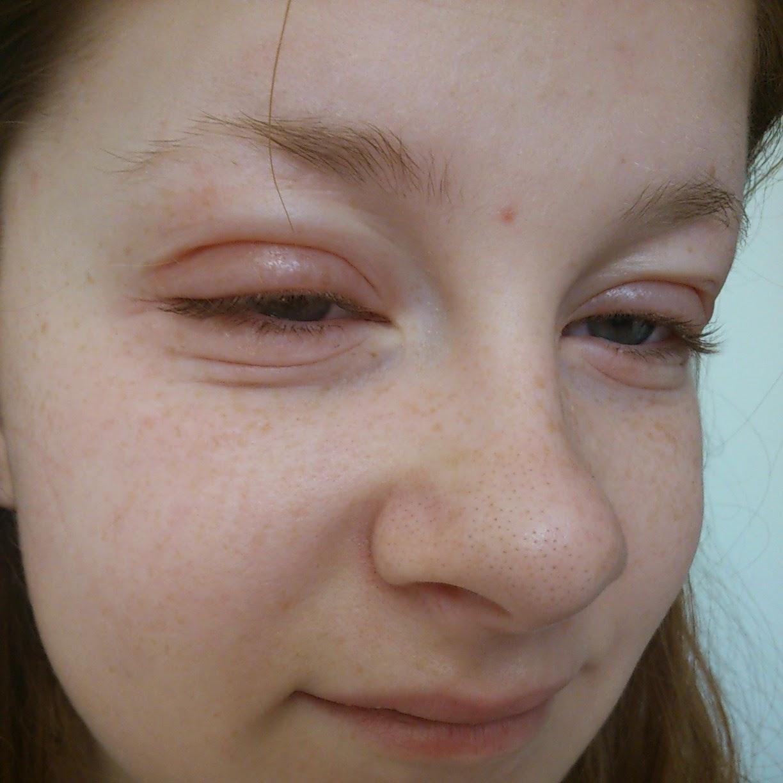 Svullna ögonlock allergi behandling