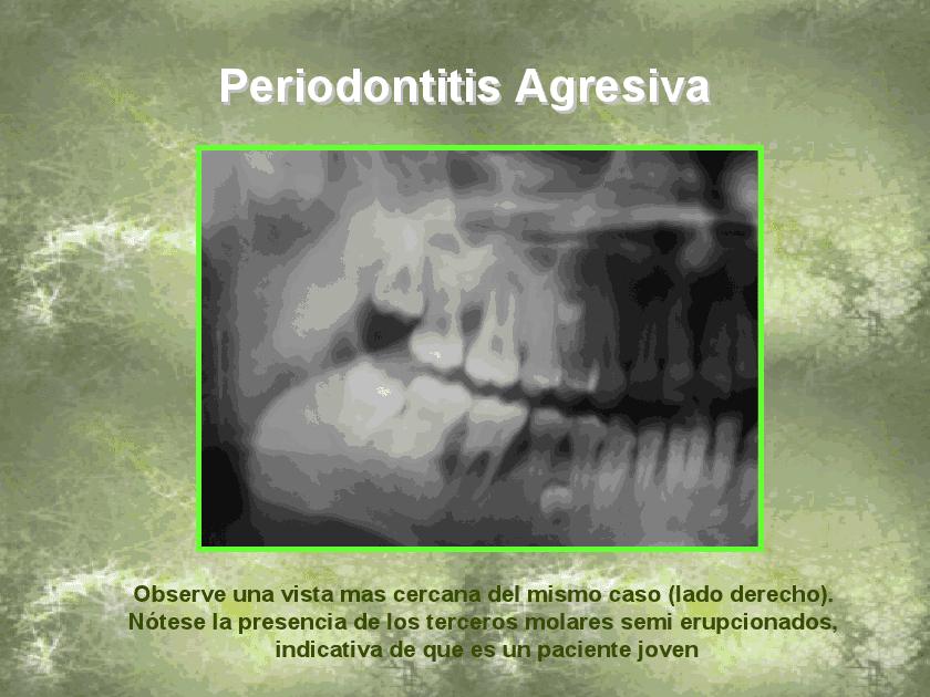 enfermedades periodontales: 2012