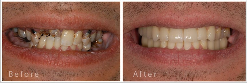 full mouth reconstruction in chennai
