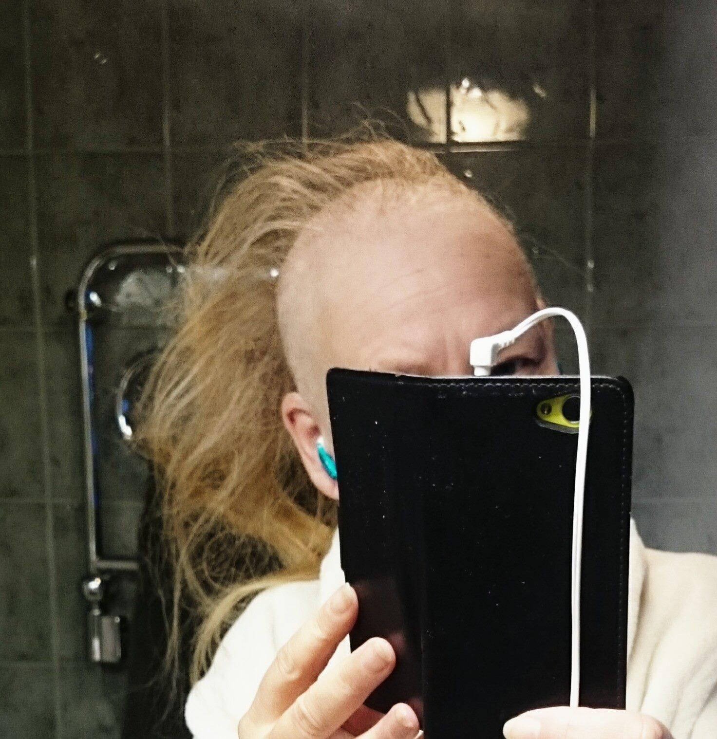 kala fläckar på huvudet