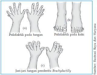 Polidaktili pada tangan (a), polidaktili pada kaki (b), dan brakhidaktili (c).
