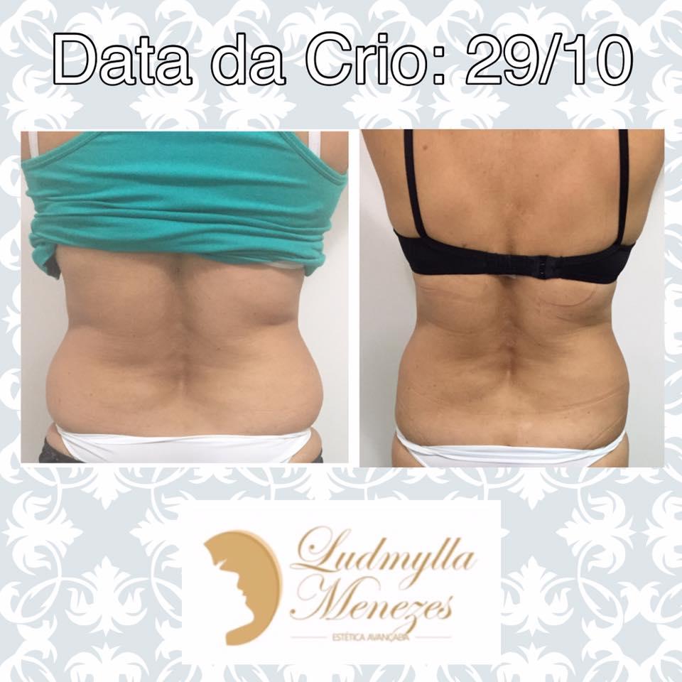 CRIOLIPÓLISE - 29 DE OUTUBRO