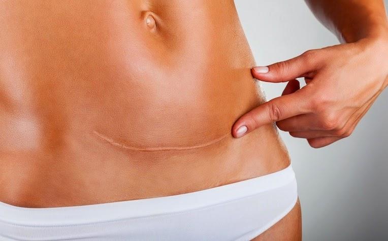 Várias Opções Para Eliminar ou Amenizar as Cicatrizes