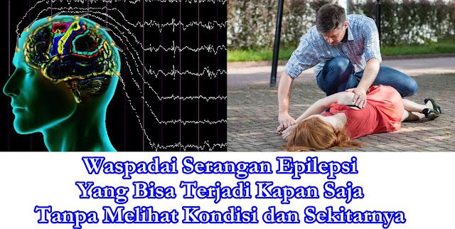 penyebab epilepsi Yang Harus Kita Ketahui