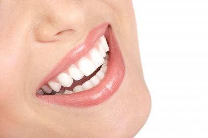 ¿Como tener dientes blancos en tu casa? consejos 100% efect