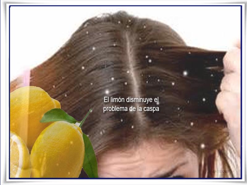 Cuidados del cabello, caspa, limón
